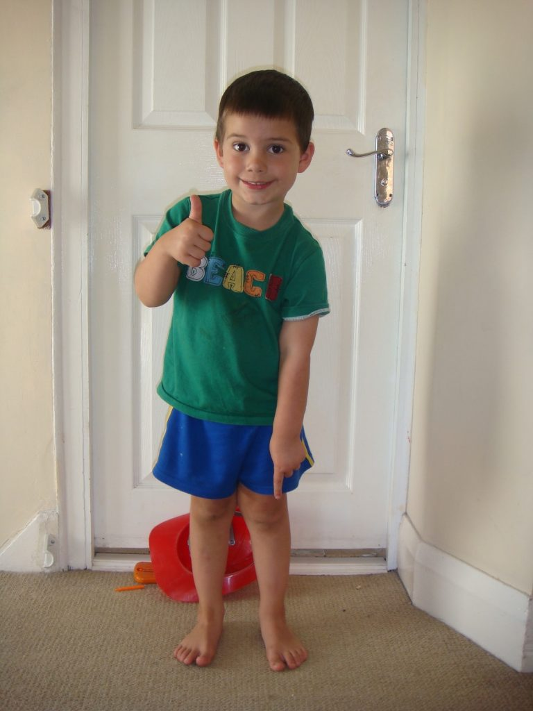 Clubfoot challenges and victories: A parent's Story 12 years On